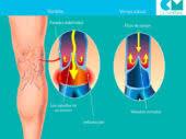 Causas de las varices y tratamiento efectivo