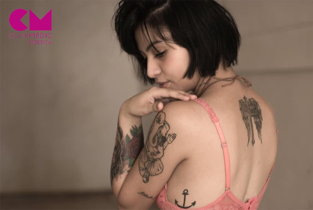 Sesiones para eliminar un tatuaje, ¿qué factores influyen?