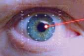 ¿Cómo se realiza la cirugía láser ocular?