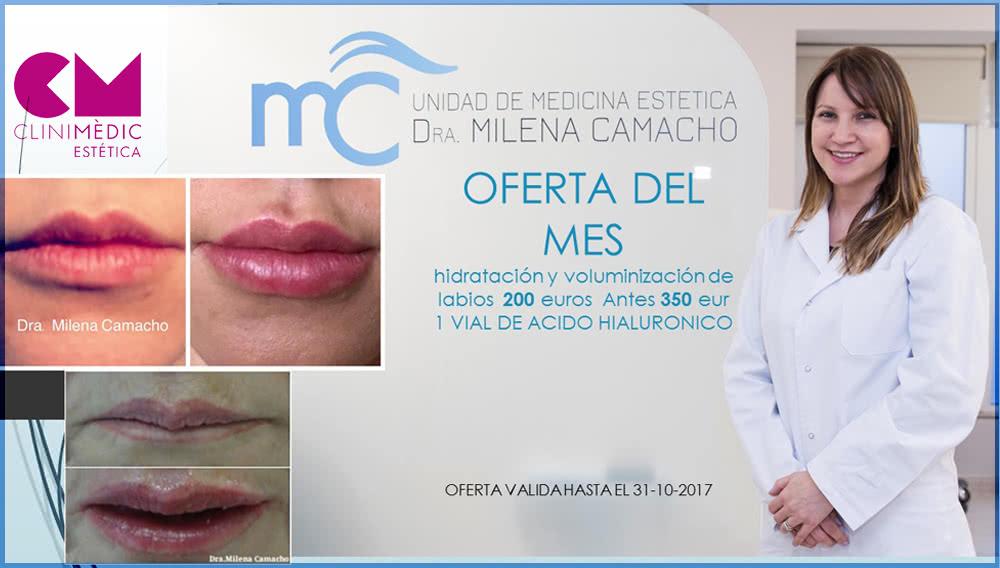 Este mes mejora el aspecto de tus labios!!