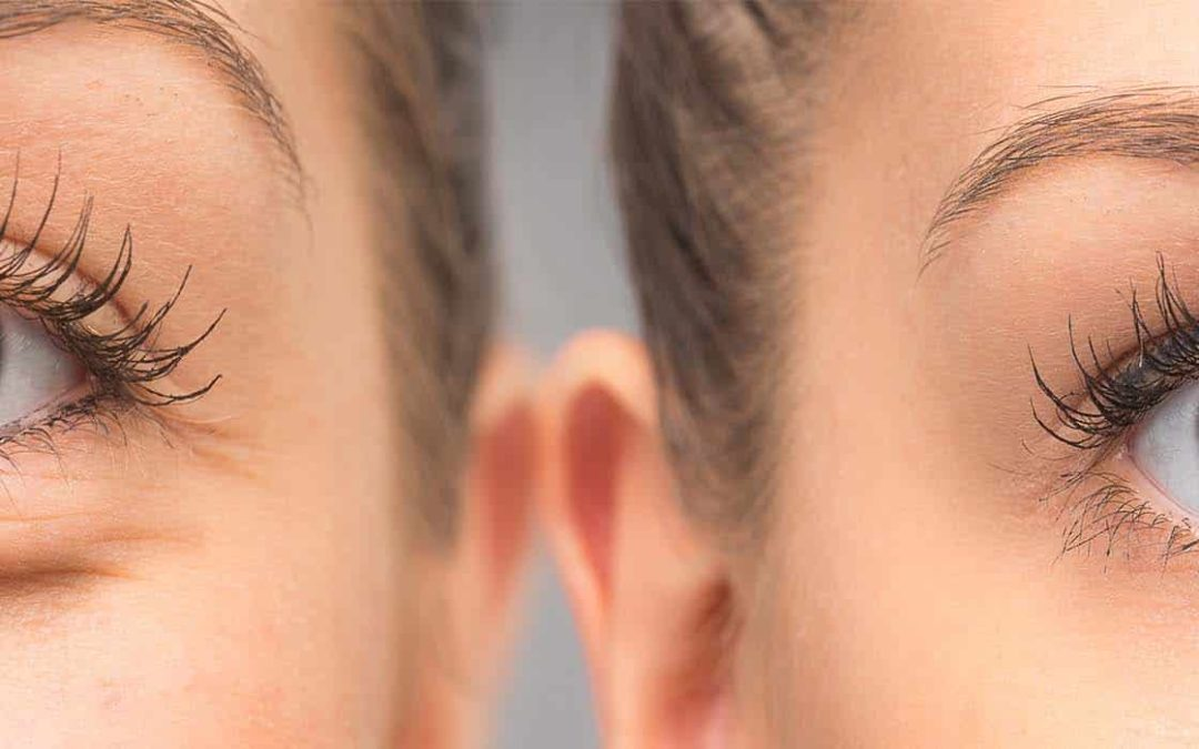 Blefaroplastia, la intervención estética más demandada hoy